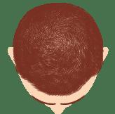 Hombre paso a paso en el recuperacionde su cabello capacitación