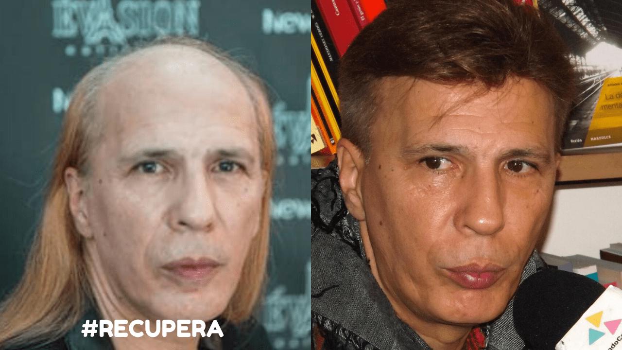 Protesis capilar Aldo Maritnez
